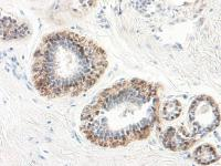 IHC-P of human normal breast and human breast lobular carcinoma in situ. The recommended concentration is 7.8 ng/mL- 15.625 ng/mL with an overnight incubation at 4˚C.