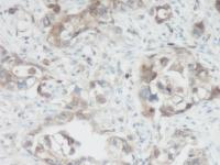 IHC-P of human pancreas infiltrating ductal adenocarcinoma tissue. The recommended concentration is 31.25 ng/mL with an overnight incubation at 4˚C.