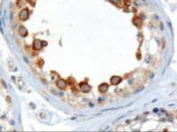Western blot analysis of ALMS1 in paraffin embedded human testis using ALMS1 Antibody at 2 ug/mL.