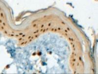 Immunohistochemistry staining of AP-2 in paraffin embedded human skin using AP-2 Antibody at 4 ug/mL. Steamed antigen retrieval with Tris/EDTA buffer pH 9, HRP-staining.