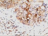 Immunohistochemistry staining of EPS8 in paraffin embedded human breast Carcinoma using EPS8 Antibody at 5 u. Steamed antigen retrieval with citrate buffer pH 6, AP-staining.