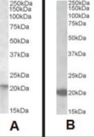 Image A: Western blot analysis of NRAS in A431 lysate (35 ug protein in RIPA buffer) using NRAS Antibody at 0.01 ug/mL. Image B: Western blot analysis of NRAS in rat small intestine lysate (35 ug protein in RIPA buffer) using NRAS Antibody at 0.1 ug/mL.