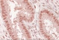 Immunohistochemistry staining of Nup50 in human uterus using Nup50 Antibody at 3.8 ug/mL. Steamed antigen retrieval with citrate buffer pH 6, AP-staining.