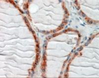 Immunohistochemistry staining of CLIP1 in human thyroid gland using CLIP1 Antibody at 2.5 ug/mL.