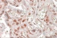 Anti-MLX Goat Polyclonal Antibody