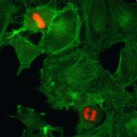 Anti-H3pSer10 Rabbit Monoclonal Antibody [clone: RM163]