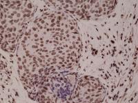 Anti-p38 MAPK Rabbit Monoclonal Antibody [clone: RM243]
