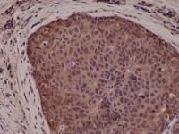 Immunohistochemical staining of formalin fixed and paraffin embedded Human breast cancer tissue sections using Anti-p38 MAPK RM245 at a 1:5000 dilution.
