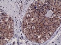 Immunohistochemical staining of formalin fixed and paraffin embedded Human breast cancer tissue sections using Anti-Caspase-3 RM250 at a 1:2500 dilution.