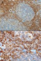 Immunohistochemistry of RAC2 in paraffin embedded human tonsil using RAC2 Antibody at 0.3 ug/mL. A) Strong staining in the interfollicular area and mantle zone. B) Positive cells in the interfollicular area.
