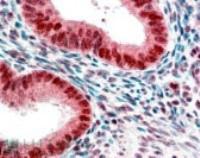 Immunohistochemistry analysis of CBX5 in human uterus using CBX5 Antibody at 2.5 ug/mL.