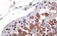 Immunohistochemistry staining of Galanin Receptor 3 in human testis using Galanin Receptor 3 Antibody at 3.8 ug/mL. Steamed antigen retrieval with citrate buffer pH 6, AP-staining.