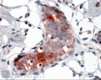Immunohistochemistry of Mammaglobin A in paraffin embedded human breast using Mammaglobin A Antibody at 4 ug/mL.