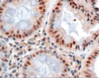 Immunohistochemistry staining of MBD2 in human colon using MBD2 Antibody at 2.5 ug/mL.